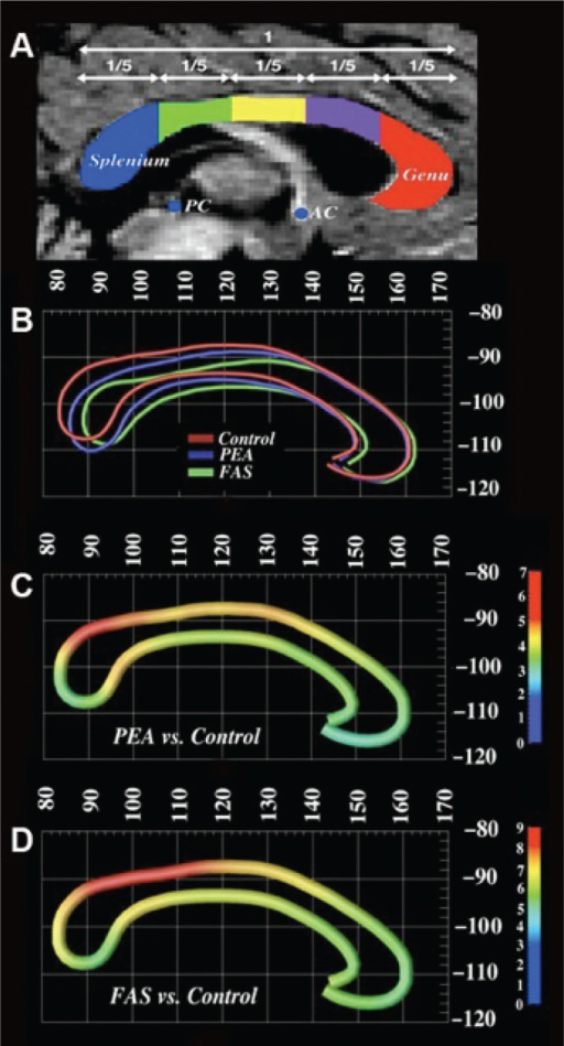 (A) (Sowell et al. 2001a): Corpus callosum divided into five equal lengths along the horizontal axis. The splenium is blue, isthmus is green, posterior midbody is yellow, anterior midbody is purple, and the genu is red superimposed over the grayscale midsagittal slice. (B) Average callosal lines in ICBM-305 standard space shows the distinctions between FAS, PEA, and control groups but with similar pattern of displacement. Note the placement of the corpus callosum in the PEA group somewhere between that of the control and FAS groups. (C) Map (in ICBM-305 space) shows average displacement vectors in millimeters between the PEA and control groups and between FAS and control groups (D). Again, the pattern of displacement is the same in the PEA subjects, but the displacement is somewhat less severe than that observed for the FAS subjects.