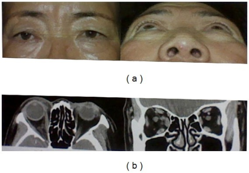 (a) Postoperatively, photographs showing that proptosis is improved with good cosmesis. (b) Postoperative CT scan demonstrating the complete removal of the tumors.