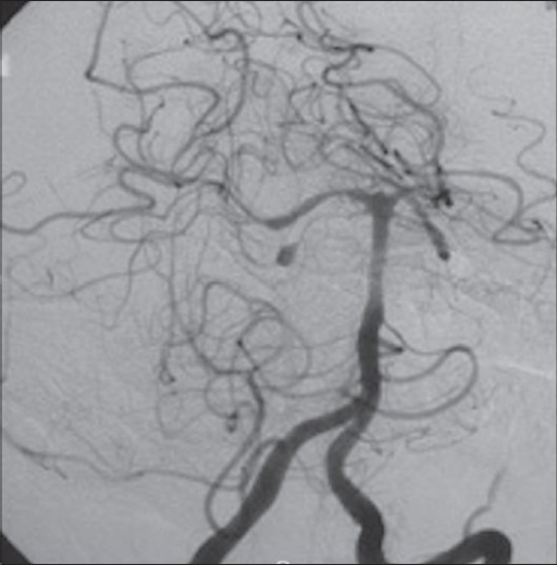 Vertebral angiography showing a fusiform aneurysm in pontomesencephalic segment of SCA