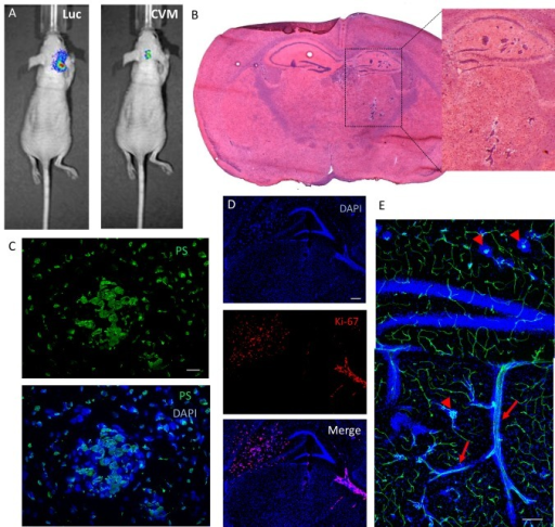 Brain metastasis mouse model: SapC-DOPS-targeting and anatomical and molecular features(A) Tumor cell luminescence (Luc) and SapC-DOPS-CVM fluorescence colocalize in vivo. SapC-DOPS-CVM was injected via the tail vein and the mouse imaged 24 hs later. B) H&E staining of a metastatic mouse brain. (C) Phosphatidylserine (PS) expression in a micrometastasis, as assessed by immunofluorescence in a mouse brain section. (D) Immunofluorescence against the mitosis marker Ki-67 (human) reveals active proliferation of MDA-MB-231-luc-D3H2LN cells in a mouse brain section. (E) Perivascular growth of breast cancer-derived MDA-MB-231-luc-D3H2LN cells in a mouse brain. Both capillary remodeling (arrowheads) and vessel co-option (arrows) characterize tumor cell growth. Scale bars = 25 μm (C); 200 μm (D, E).