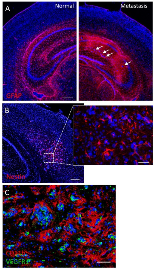 Tumor-stromal markers of brain metastasis(A) Immunofluorescence against the astrocytic marker GFAP shows extensive glial reactivity in a hippocampus harboring brain micrometastases (arrows). The contralateral hippocampus shows normal GFAP staining pattern. (B) Mouse nestin immunolabeling reveals numerous nestin-positive host cells with glial or endothelial morphologies in a brain region colonized by metastatic cancer cells. (C) Double immunofluorescence staining against CD11b and VEGFR1 in a metastatic mouse brain. Note the extensive coverage of cancer cells by CD11b-positive microglia/macrophages, while VEGFR1 expression seems to be restricted to metastatic cells. Scale bars = 200 μm (A, B); 20 μm (B, inset); 50 μm (C).