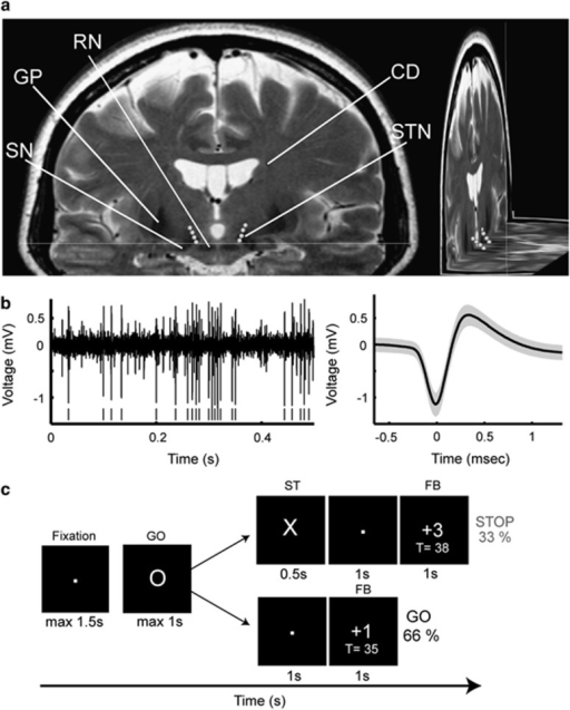 (a) Localization of DBS electrodes contacts on axial and coronal MRI sections of a patient. (b) Microelectrode STN recording and mean waveform (black)±s.d. (gray) of the isolated spike cluster. (c) Stop-signal task. Participants were instructed to respond as fast as they can to the GO cue and to withhold their response when a stop signal occurs. Task difficulty during STOP trials was adjusted by shortening or lengthening the delay between GO and STOP cues (stop-signal delay, SSD) after unsuccessful or successful STOP trials. After each trial, positive and negative feedback was presented for 1 s (see Materials and Methods). CD, caudate nucleus; DBS, deep brain stimulation; GP, globus pallidus; MRI, magnetic resonance imaging; RN, red nucleus; SN, substantia nigra; STN, subthalamic nucleus.