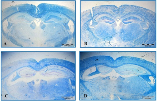 Luxol Fast Blue Staining. Significant differences are observed among different groups, including control (A), EAE (B), EAE + sesame oil (C), and EAE + Q10 (D). Demyelination area is shown by dots
