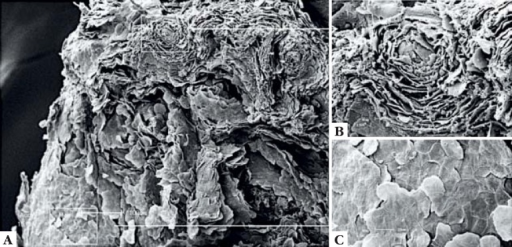 Scanning electron microscopy with higher magnification of the surface.A. keratotic area ( x 120). B. detail of theirregular keratinization (x 600). C. detail of the normal areashowing normal release of corneocytes (x 500)