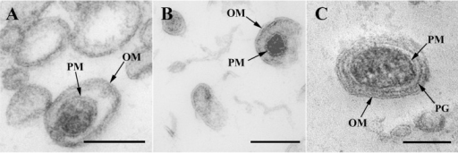 O-IMV visualized by TEM.TEM micrographs from HPF-FS sections of MVs isolated from (A) N. gonorrhoeae, (B) Pseudomonas PAO1 and (C) A. baumannii. O-IMVs observed in MV preparations from the three strains have certain features in common: all are surrounded by an external bilayer, probably corresponding to the outer membrane (OM) of the cell, and contain an inner membrane, probably corresponding to the plasma membrane (PM) of the cell, which entraps a high electron-dense material. In the image of O-IMVs from A. baumannii the putative peptidoglican layer (PG) can be seen. Bars 100 nm.