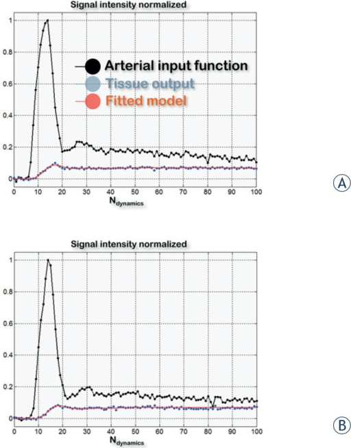 Example of time intensity curves derived from the internal carotid and tumoral lesion before (A) and during treatment with cetuximab (B) in a patient with a squamous cell carcinoma of the head and neck. The quality of the fits of TICs using the Brix two-compartment kinetic model was found to be good (estimation of the root mean squared error of the regression averaged on the 14 normalized fits: εpre-treatment = 5%, εduring-treatment = 6%).