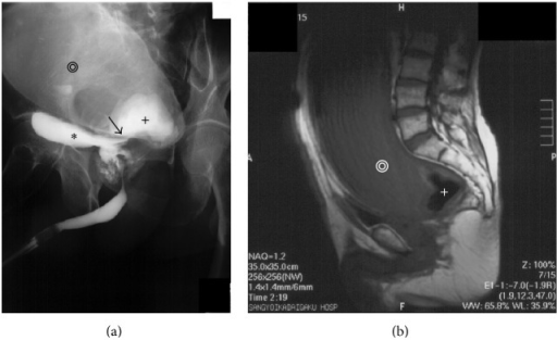 (a) Retrograde urethrography indicated a dilated rectum (black double concentric circles), urinary bladder (black star), and rectourethral fistula between the prostate urethra and lower rectum (black arrow) with stones (black cross). (b) Magnetic resonance imaging (MRI) revealed a megarectum (white double open circles) with stones (white cross).