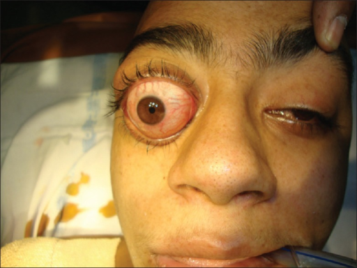 preoperative photograph of the patients eye showing right exophthalmos