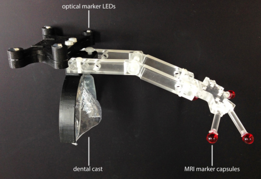 Marker geometry utilized for the matching of MRI and NIR scans