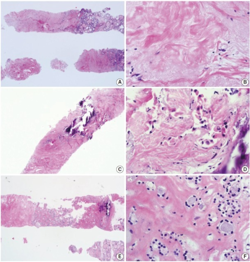 Core needle biopsies of fibrotic nodules. The right column images represent the high-power views of the lesional area in the left column images. (A) The specimen consists of an acellular fibrotic lesion and adjacent normal parenchyma. (B) The fibrotic area contains no follicular cells, but contains a few lymphocytes and stromal cells. This lesion is classified in the nondiagnostic category. (C) The specimen shows a paucicellular structure with marked fibrosis and calcification. (D) Scattered atypical cells with suspicious morphological features of papillary carcinoma are embedded in the fibrosis. This lesion contains suspicious follicular cells and should therefore be diagnosed as suspicious for malignancy or as a malignancy, depending on the degree of nuclear atypia. (E) The specimen shows marked fibrosis and calcification. (F) The high-power view of the lesion shows relatively numerous benign-appearing follicular cells. This lesion can be diagnosed as a benign follicular nodule.