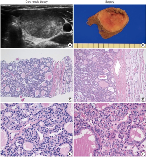 The core needle biopsy of a follicular neoplasm with focal nuclear atypia. The images in the left and right columns show the findings of the core needle biopsy and the corresponding surgical specimen, respectively. (A) The ultrasound image shows a solid, homogeneous, hypoechoic, ovoid nodule with a peripheral halo. (B) The cut surface of the resected specimen corresponds to the ultrasound image in Fig. 5A. (C, D) The low-power view shows a follicular proliferative lesion with a fibrous capsule. (E) The high-power view of Fig. 5C reveals focal nuclear atypia. (F) The corresponding image in the surgical specimen more definitely shows the morphological features (e.g., nuclear enlargement, irregularity, clearing, and grooves) of a follicular variant of papillary carcinoma.