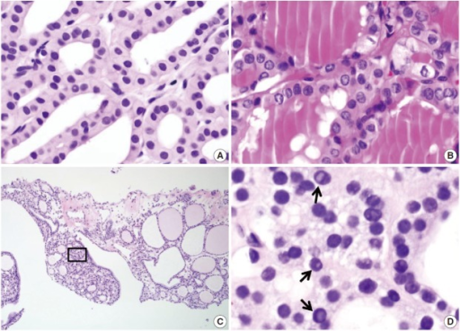 Diagnostic pitfalls in thyroid core needle biopsy. Follicular cells are smaller and darker in core needle biopsies in comparison (A) to resected specimens (B). These images have been obtained from the same patient as those pictured in Fig. 6. (C) The core needle biopsy shows the histologic features of a benign follicular nodule. (D) The high-power view of the boxed area in Fig. 8C shows nuclear vacuoles that mimic intranuclear cytoplasmic pseudoinclusions in papillary carcinoma (arrows).