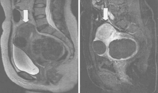 MRI images for UFs with different locations. Left: Before HIFUA; right: after HIFUA.