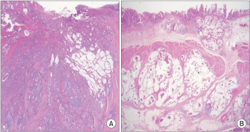 Extracellular mucin pools are lower than one half of the tumor area (A, Hematoxylin and eosin stain ×20) and mucinous gastric adenocarcinoma (B, Hematoxylin and eosin stain).