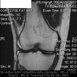 MRI of the right knee-  There is mild edema in the posterior/posterolateral aspect of the lateral femoral condyle in a subchodral location.  No marrow or cortical signal abnormalities are seen.  ACL has an abnormal appearance and configuration with disruption of the distal fibers.  PCL is abnormally thickened with intermediate signal on T1 images and surrounding edema noted on T2 images.  The medial collateral ligament is abnormally thickened and contains high signal (striated appearance), representing a partial thickness tear.  The lateral collateral ligament is intact.  The medial and lateral patellar retinacula and extensor mechanism are normal.   Articular surfaces are notable for mild chondral irregularity and fissuring of the medial facet inferiorly.   Mild chondral irregularity of the weight-bearing and posterior portion of the medial femoral condyle. No definite focal defects are seen.There is a complex tear of the posterior horna and midbody of the medial meniscus with extrusion of the meniscus both anteriorly and laterally.  The posterior horn of the lateral meniscus contains some intrasubstance high signal but no definite tear.