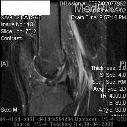 MRI of the right knee- The knee is hyperextended.  There is mild edema in the posterior/posterolateral aspect of the lateral femoral condyle in a subchodral location.  No marrow or cortical signal abnormalities are seen.  ACL has an abnormal appearance and configuration with distal fibers not well seen-consistent with an ACL tear.  PCL is abnormally thickened with intermediate signal on T1 images and surrounding edema noted on T2 images.  The medial collateral ligament is abnormally thickened and contains high signal (striated appearance), representing injury.  The lateral collateral ligament is intact.  The medial and lateral retinacula and extensor mechanism are normal.   Articular surfaces are notable for mild chondral irregularity and fissuring of the medial facet inferiorly.   Mild chondral irregularity of the weight-bearing and posterior portion of the medial femoral condyle. No definite focal defects are seen.There is a complex tear of the entire medial meniscus with extrusion of the meniscus both anteriorly and laterally.  The posterior horn of the lateral meniscus contains some high signal but no definite tear.  The anterior horn and body of the lateral meniscus are unremarkable.