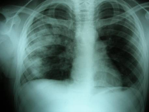 The direct x-ray image of the first patient on the 2nd day of the trauma. Two cavitary lesions on the right and accompanying low-percentage pneumothorax are observed.