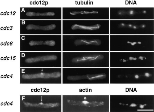 Localization of  cdc12p in different actin ring  mutants during mitosis. (A)  cdc12-299 (FC127); (B) cdc3313 (FC114); (C) cdc8-346  (FC131); (D) cdc15-287  (FC55); (E and F) cdc4-377  (FC361). Mutant cells were  grown in YE5S at permissive  temperature (25°C), and then  shifted to restrictive temperature (35.5°C) for 4 h. Cells  were fixed and processed for  immunofluorescence with  anti-cdc12 antibody, anti-tubulin antibody or anti-actin antibody, and DAPI. On the basis of spindle and nuclear  morphology, cells pictured  are in anaphase, the cell cycle  period of maximum cdc12p  ring staining in wild-type cells.  (A–C) Cells are in mitosis in  which two nuclei are dividing  into four and thus exhibit  double spindles; (E–F) cells  exhibit single spindles. (A–C)  Mutants exhibit no specific  cdc12p staining; the cytoplasmic staining is nonspecific background staining. (E and F) Note the medial spot of cdc12p (arrow) in the  cdc4 mutant, which localizes to the origin of an actin aster (F, middle panel, labeled a). Bar, 10 μm.
