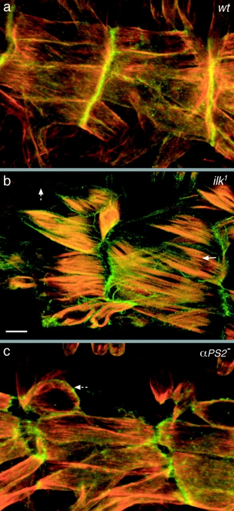 ILK is required for coupling the actin cytoskeleton to the plasma membrane. Visualization of the plasma membrane (green) and actin filaments (red) of the muscles in embryos that are wild type (a), lack ILK [ilk1/Df(3L)Pc-14d] (b), or lack the PS2 integrin (if B4/Y) (c). Lateral views are shown of the ventral longitudinal muscles of embryos at stage 17 (a and b) or 16 (c). The detachment of actin from the plasma membrane in the absence of ILK is shown by an arrow in b, and the detachment of the muscle plasma membrane is shown by dashed arrows in b and c. The plasma membrane is labeled with Src-GFP (green) and the filamentous actin with rhodamine-labeled phalloidin (red). Bar, 10 μm.