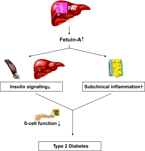 Schematic overview of the effects of circulating fetuin-A on target tissues. Increase in obesity, particularly in visceral fat mass, results in an increase of liver fat. By yet-unknown mechanisms, this is associated with increased production of fetuin-A (11,23). Elevated circulating fetuin-A directly inhibits insulin signaling in muscle and liver (7–9) and results in systemic subclinical and adipose tissue inflammation (19). Under a normal β-cell function, fetuin-A–induced insulin resistance and effects of subclinical inflammation on the β-cells may be compensated; however, the existence of impaired β-cell function results in fetuin-A–induced type 2 diabetes.