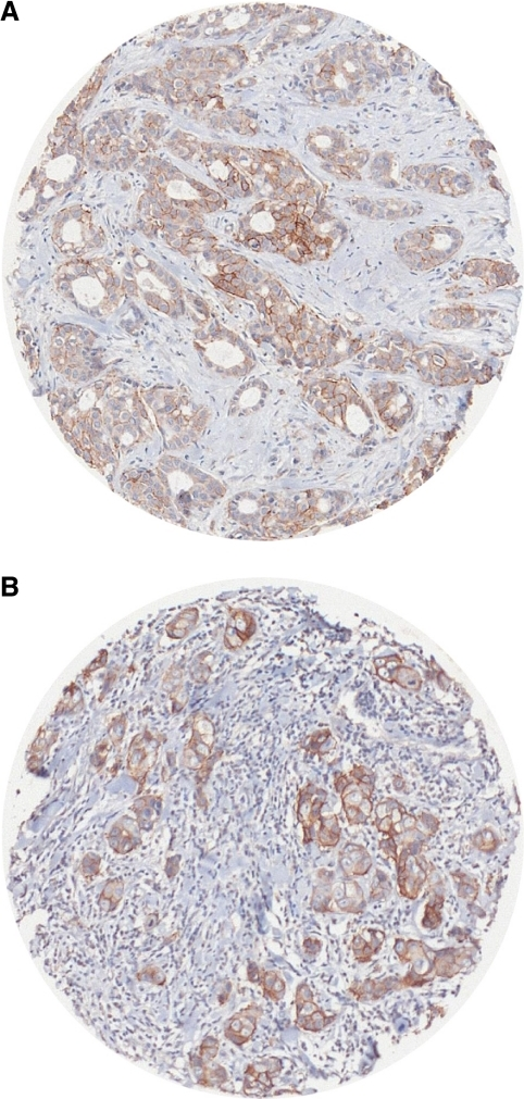 c Kit-positive immunostaining (A) in grade 2 breast carcinoma and (B) in grade 3 breast carcinomas: 'spots' corresponding to tumour cores measuring 0.6 mm in diameter lead to tissue microarray (TMA).