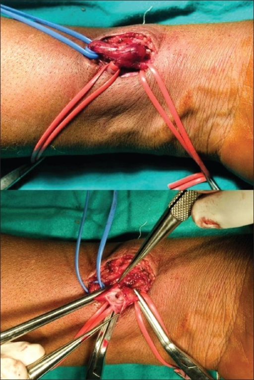 Left End To Side Arteriovenous Fistula With Exposed Vas Open I