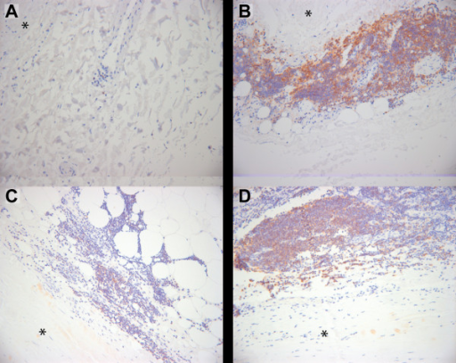 Immunohistochemical staining of CD22 demonstrates expression in AAA tissue associated lymphocytes. Immunohistochemical staining using a commercially available specific antibody against CD22 was performed on formalin-fixed paraffin embedded tissue sections of non-aneurysmal abdominal aorta (A) and AAA (B, C, D). Negative control staining with non-immune serum showed no staining (data not shown). Images are centered on lymphocytes (small round cells with sparse cytoplasm) primarily seen in the adventitial layer. The adjacent media is indicated with an asterisk. Positive staining appears reddish-brown with hematoxylin counterstaining in blue.