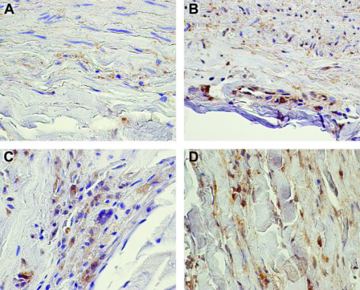 Immunohistochemical staining of PEPD demonstrates expression in both aneurysmal and non-aneurysmal aortic tissue. Immunohistochemical staining using a commercially available specific antibody against PEPD was performed on formalin-fixed paraffin embedded tissue sections of non-aneurysmal abdominal aorta (A, B) and AAA (C, D) with staining observed in medial (A) and adventitial layers of controls and throughout the aneurysmal wall. Negative control staining with non-immune serum showed no staining (data not shown). Regions of positive staining appear reddish-brown with hematoxylin counterstaining in blue.