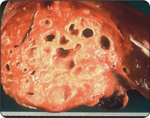 Human liver with alveolar echinococcosis. Photo: Institute of Parasitology, University of Zurich.