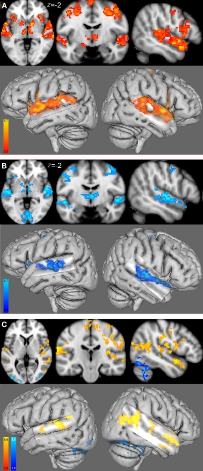 Group functional maps for the contrast of interest, i. e., melody discrimination minus auditory control. Increased task-related activity for the contrast resulting from the melody discrimination minus auditory control trials in (A) the female group (red-yellow) and (B) the male group (blue-lightblue; cluster-corrected p < 0.05, z = 2.3). (C) Between-group functional maps differences (z = 4). In red-yellow: increased task-related activity for the females compared with males; in blue-lightblue: increased task-related activity for the males compared with females (cluster-corrected p < 0.05, z = 1.6).