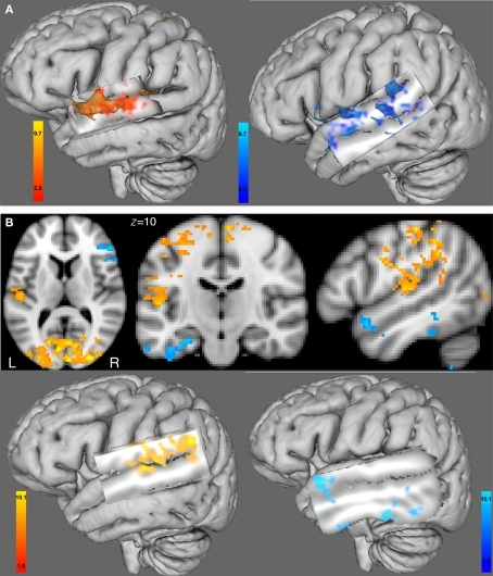 (A) Functional connectivity with the BOLD time course from the seed region of the right HG ROI. Left hemisphere 3D view for (left) the female group and (right) the male group (cluster-corrected p < 0.05, z = 2.3). (B) Between-group comparison of the functional connectivity with the BOLD time course from the right HG ROI using 2D views (top) or 3D views (bottom). In red-yellow: increased in functional connectivity with the right HG in females compared with males; in blue-lightblue: increased in functional connectivity with the right HG in males compared with females (cluster-corrected p < 0.05, z = 1.6). All 3D views were displayed by cutting sagittal slices through the left temporal cortex in order to focus on left temporal regions.
