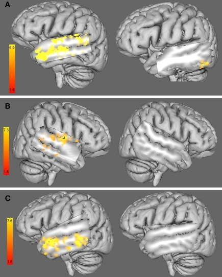 (A) 3D left hemisphere view of a whole-group analysis (including females and males) of the functional connectivity maps using the right HG as a seed ROI and adding (left) the %RT change with 10 Hz-rTMS targeting the right HG at time 1 (i. e., 0–5.5 min) as a covariate and (right) the %RT change with 10 Hz-rTMS targeting the left HG at time 1 (i.e., 0–5.5 min) as a covariate. (B). Three dimensional right hemisphere view of a whole-group analysis (including female and male) of the functional connectivity maps using the left HG as a seed ROI and adding (left) the %RT change when 1 Hz-rTMS targeted the left HG at time 1 (i.e., 0–5.5 min) as a covariate and (right) the %RT change when 1 Hz-rTMS targeted the right HG at time 1 (i.e., 0–5.5 min) as a covariate. (C) 3D left hemisphere view of a whole-group analysis (including female and male) of the functional connectivity maps using the right HG as a seed ROI and adding (left) the %RT change when 10 Hz-rTMS targeted the right HG at time 2 (i.e., 5.5–11 min) as a covariate and (right) the %RT change when 10 Hz-rTMS targeted the left HG at time 2 (i.e., 5.5–11 min) as a covariate. Three dimensional views were displayed by cutting sagittal slices through the left temporal cortex in order to focus on left temporal regions.