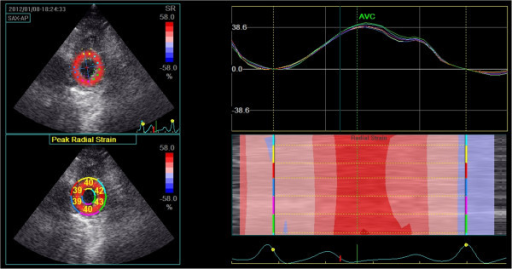 Radial strain at the level of the apex. Top left: Peak systolic apical radial strain displayed using a colour map. Bottom left: Peak systolic apical radial strain displayed as a percentage for each individual segment. Top right: Left ventricular radial strain versus time curves corresponding to the 6 myocardial segments, Y-axis unit is %. Right bottom: Two-dimensional and M-curve colour-coded views show positive strain during systole.