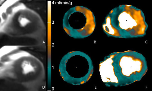 Perfusion Pixel-Maps in a patient with 85% LAD and RCA stenoses. A) stress perfusion image, B) pixel map generated using Epi/Endo ROIs, C) pixel map generated without ROI's. D), E) and F) are the rest images and perfusion maps.