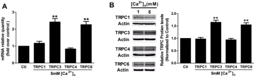 The influence of CaSR activation on TRPC mRNA levels and protein expression.Human MCs were starved for 24-free medium prior to stimulation with 1 mM (Ctl) or 5 mM [Ca2+]o for 24 h. (A) Real-time PCR experiments showed that the administration of 5 mM [Ca2+]o for 24 h significantly increased the TRPC3 and TRPC6 mRNA levels but did not affect the mRNA levels of TRPC1 or TRPC4 (**p<0.01 vs. Ctl, n = 3). (B) Representative Western blot and corresponding quantitative analysis showing that treatment with 5 mM [Ca2+]o for 24 h increased the TRPC3 and TRPC6 protein expression but did not affect the protein expression of TRPC1 or TRPC4 (**p<0.01 vs. Ctl, n = 3). Asterisks indicate the statistical significance (**p<0.01), with respect to 1 mM [Ca2+]o conditions (Ctl). Data are shown as the means ± SEMs.