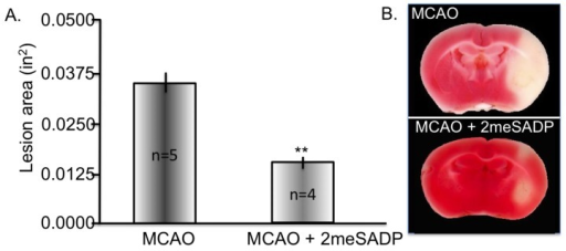 Purinergic receptor stimulation using 2-methylthioadenosine diphosphate trisodium salt (2meSADP) following middle cerebral artery occlusion (MCAO) rescues cortical cellular layers. Rats were treated with 100 μM 2meSADP 30 min post MCAO. Forty-eight hours following treatment the rats were sacrificed and triphenyltetrazolium chloride (TTC) staining was performed. (A) Histogram demonstrating the reduction in lesion volume with 2meSADP treatment. (B) Representative images from two different rats following MCAO with or without 2meSADP treatment. ** indicates p < 0.001 using student's t-test.