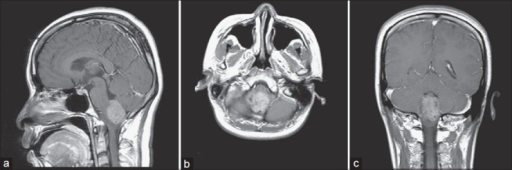 Preoperative brain MRI. T1-weighted postcontrast image, sagittal (a), axial (b), coronal (c) views revealed a heterogeneous enhancing mass lesion with several foci of cystic change over inferior fourth ventricle, about 3.2 × 3 × 2.6 cm, and extension to foramen magnum, causing mild dilatation of fourth ventricle