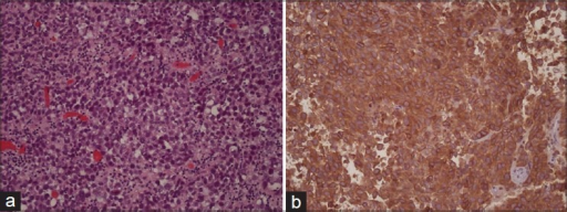 Histology of the tumor. H and E, ×200 (a) shows the specimen composed of sheets of large anaplastic cells divided by delicate fibrovascular septae with small lymphocytes, mitosis and necrosis. CD117 stain (b) shows the positive staining