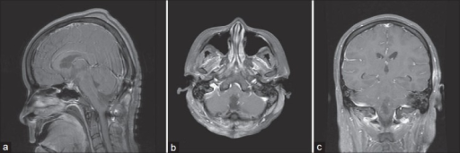 Immediate postoperative brain MRI. T1-weighted postcontrast image, sagittal (a), axial (b), coronal (c) views showed the completed removal of the tumor in the inferior portion of fourth ventricle and foramen magnum