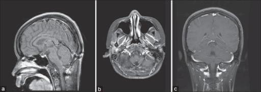 1-year postoperative brain MRI. T1-weighted postcontrast image, sagittal (a), axial (b), coronal (c) views demonstrated neither residual nor recurrent tumor
