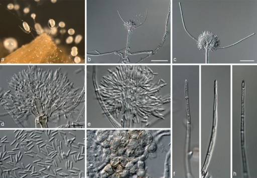 Gliocephalotrichum mexicanum (CBS 135947, ex-type culture). a. Conidiophores on carnation leaf on SNA; b, c. conidiophores; d, e. penicillus; f–h. apex of stipe extensions; i. conidia; j. bulbilloid aggregate of chlamydospores. — Scale bars: b = 50 μm; c = 20 μm; d = 10 μm (applies to e–j).