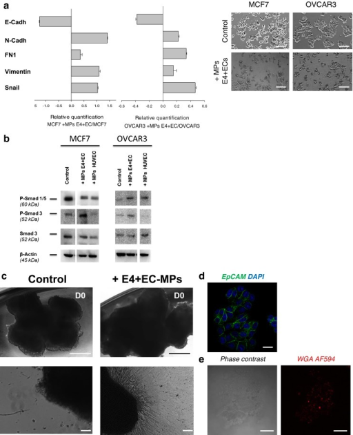 MPs from activated endothelial cells induce EMT in epithelial cancer cells and trigger expansion of cells from ovarian cancer metastatic nodules explants. a The relative quantification of EMT genes were performed by real-time qPCR on MCF7 and OVCAR3 after treatment with E4+ECs MPs. The mesenchymal genes (N-cadherin, Snail, Fibronectin and Vimentin) were increased compared to the control. E-cadherin expression was decreased. Relative transcript levels are represented as the log10 of ratios between the 2 subpopulations of their 2–ΔΔCp real-time PCR values. Phase contrast microscopy showing significant morphological change concordant with a mesenchymal phenotype (bottom panel). Scale bar 100 μm. b Western blot analysis of P-Smad 1/5, P-Smad 3 and Smad3 revealed an implication of P-Smad 3 in the EMT process induced by E4+ECs MPs in MCF7 and OVCAR3 cells. c Phase contrast imaging of ovarian cancer explant. Explants of metastatic ovarian cancer nodules were cultured in Petri dishes (top panel). Cells spreading from 3D explants after 7 days of cultured without (bottom left panel) or with E4-ECs MPs stained with AF594-WGA (bottom right panel). Top scale bar: 500 μm. Bottom scale bar: 100 μm. d Epcam+ outgrowths are observed in the EC-MPs treated group. Scale bar: 25 μm. e After 7 days of culture, explants treated with AF594-WGA MPs were collected and analyzed by confocal microscopy. AF594 staining in the explant demonstrated that the MPs have been uptake. Scale bar: 50 μm