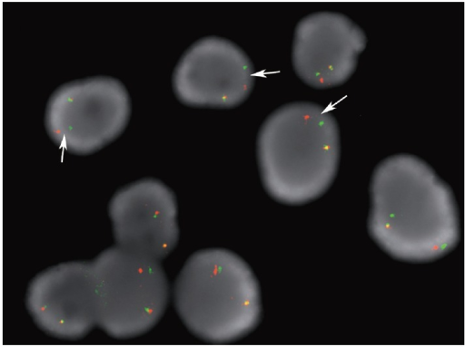 Example case of anaplastic lymphoma kinase (ALK) rearrangement fluorescence in-situ hybridization assay performed on a direct smear containing lung adenocarcinoma cells. The arrows point to the split orange and green signals that are separated by a distance of > 2 signal diameters. These nuclei would be scored as positive for the ALK rearrangement.