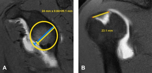 (A) The glenoid track is calculated as 84% of the actual glenoid width measured on the sagittal oblique magnetic resonance (MR) image. A best-fit circle is placed on the glenoid to calculate the expected width prior to bone loss. Therefore, both percentage of bone loss and glenoid track can be determined. In this case, the actual glenoid width is 24 mm, with 4 mm of bone loss (17% bone loss). The glenoid track is 84% of 24 mm, or 20.1 mm. (B) The distance from the rotator cuff footprint to the medial margin of the Hill-Sachs lesion is measured on the coronal MR. In this case, it is 23.1 mm. Since the Hill-Sachs width to the footprint (23.1 mm) is greater than the glenoid track measurement (20.1 mm), it is considered outside the glenoid track and at high risk for engaging.