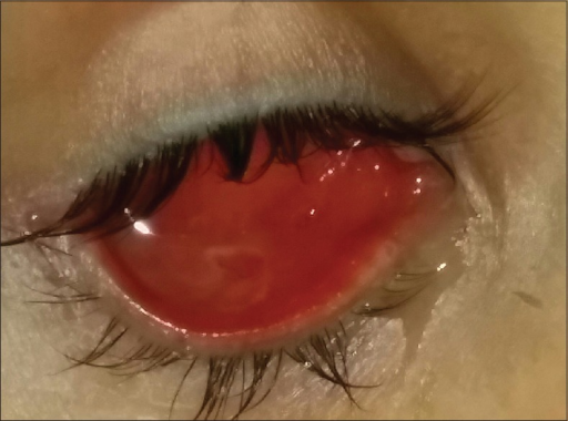 Photograph of the anophthalmic socket, after treatment with systemic anti-tuberculous therapy