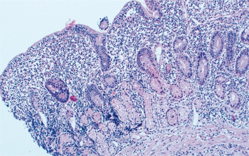 The biopsy specimen from the bulb duodenum taken during the second hospitalisation. Flattened villi and significantly increased IEL number characteristic of active CD are shown. Original magnification 20×
