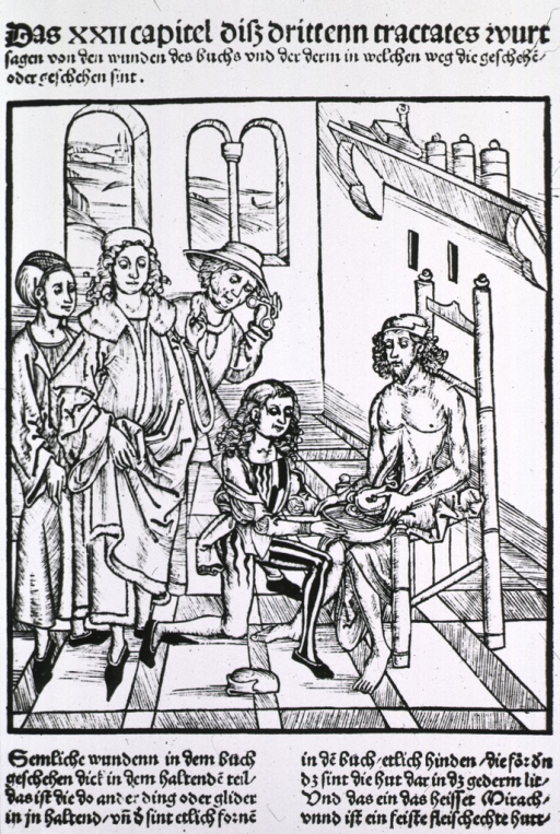 <p>Man in chair with abdominal wound.  Four attending in the interior scene.</p>