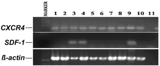 SDF-1/CXCR4 expression in various cell lines. 1: MDA-MB-157; 2: MDA-MB-231; 3: MDA-MB-435s; 4: MDA-MB-436; 5: MDA-MB-453; 6: MCF7; 7: BT549; 8: ZR751; 9: MRC5; 10: HECV; 11: negative control. CXCR, CXC chemokine receptor; SDF, stromal cell-derived factor.