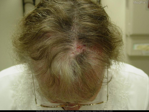 Scattered crops of erythematous papules with crusting coalescing into plaques without evidence of drainage or foul odor; mild hyperpigmentation at prior crops of lesions; no lymphadenopathy, nail banding, hair, facial, or oral involvement.