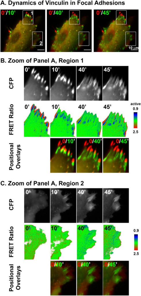 The conformation of vinculin during focal adhesion dynamics. 24 h after plating, a fully spread smooth muscle cell was imaged at time 0, 10, 40, and 45 min. Images were corrected for photobleaching before calculation of the FRET ratio image. (A) The positions of the cell at later time points (green) relative to 0 time point (red) were displayed as color joins of CFP images. (B) Enlargement of the retraction zone from region 1 in A. Notably, as mature focal adhesions disassemble, vinculin loses the actin-bound conformation in a gradient from the tip to the base of the focal adhesions. (C) Enlargement of the focal adhesion assembly zone from region 2 in A. As focal adhesions mature, recruited vinculin does not always adopt the actin-bound conformation.